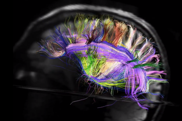 The Brain, As It's Never Been Seen Before